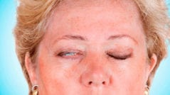 paralisi-facial