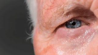 imagen de un párpado para realizar cirugía ocular