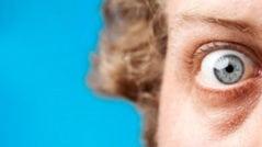 imagen de orbitopatía tiroidea, expertos en cirugía ocular