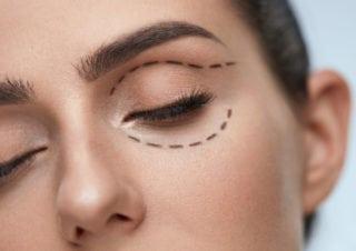 imagen de una mujer paciente para una cirugía plástica ocular