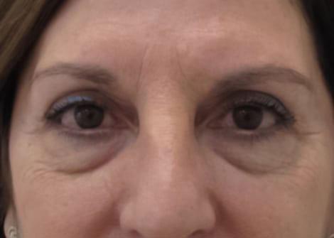 blefaroplastia-laser-madrid-sad-n1